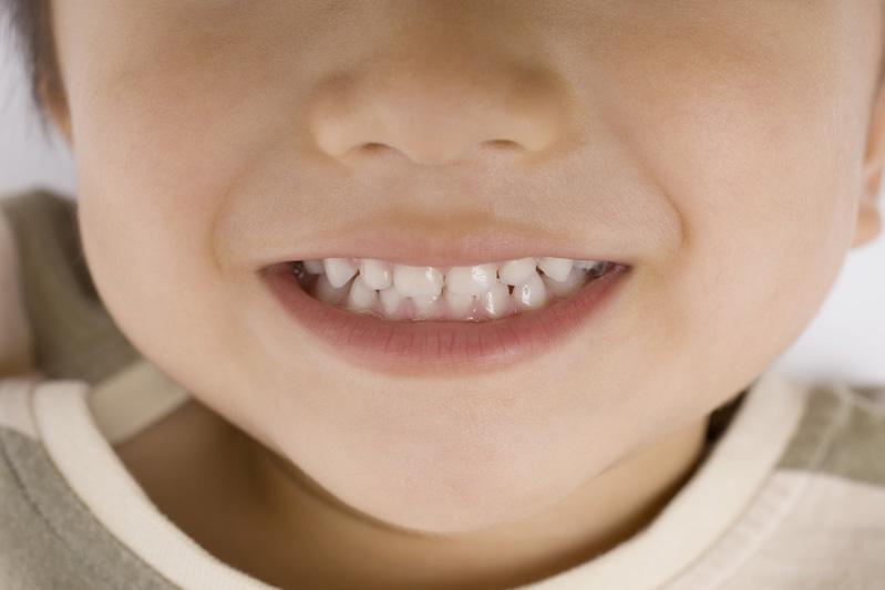 お子様の歯並び・噛み合わせを守るために