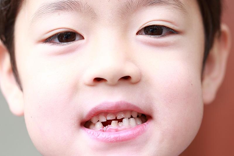生まれつき歯が足りないお子様が増えています
